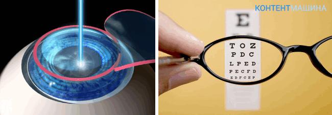 операция на глазах лазером