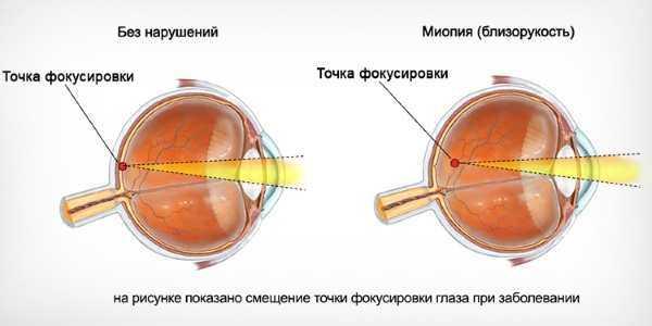 смещение точки фокусировки при миопии