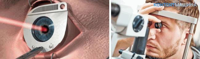 проверка зрения после операции на глазах