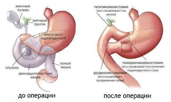 Опухоль головки поджелудочной железы операция