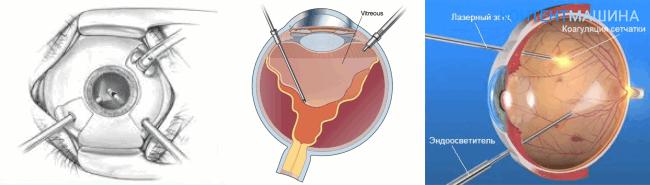 Операция витрэктомия глаза