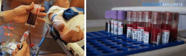 Компоненты крови донора хранятся в гемаконе – полимерном контейнере