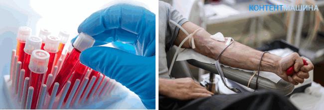 как проходит гемотрансфузия