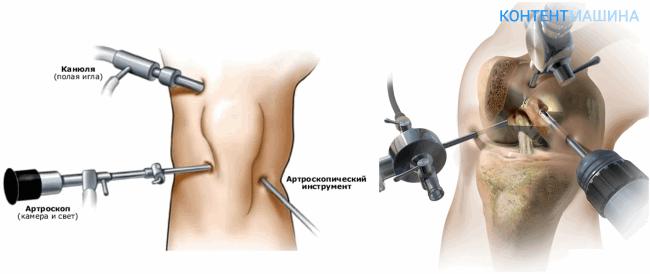 Техника выполненияартроскопии