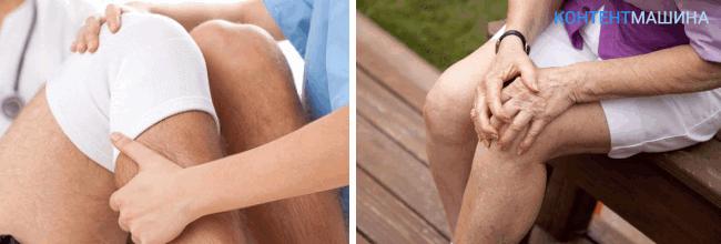 артроскопия коленного сустава - реабилитация