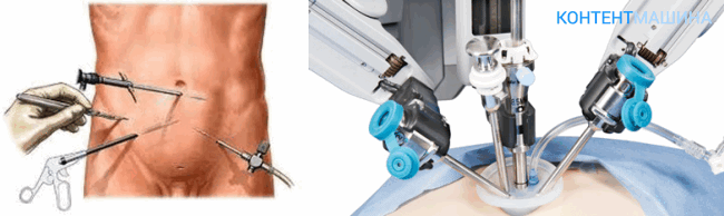 Гемиколэктомия при лапароскопическом доступе