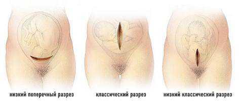 Кесарево сечение - виды разрезов