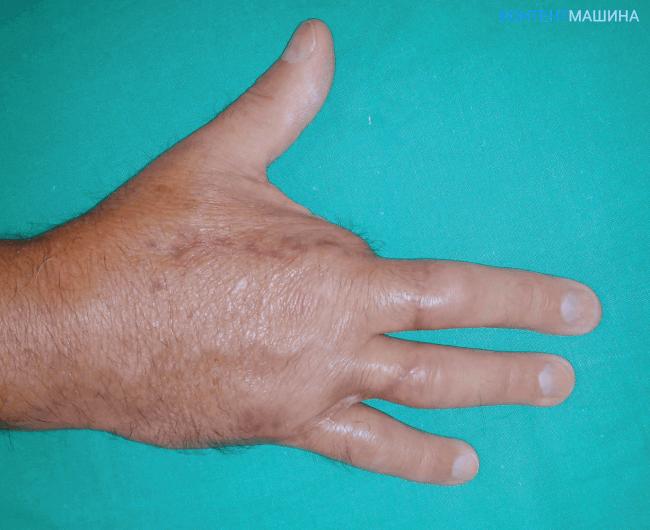 Ампутация пальца на руке