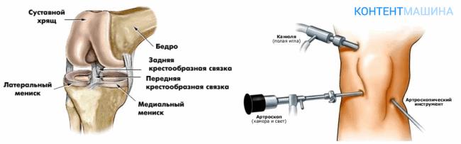 показания к артроскопии мениска