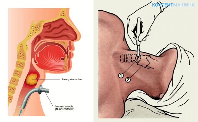 трахеостомия - техника проведения операции