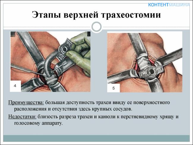 Этапы верхней трахеостомии