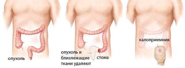 Операции на прямой кишке - удаление опухоли