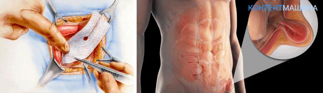 Открытая герниопластика