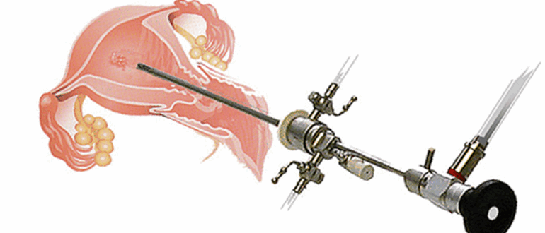 Биопсия методом выскабливания