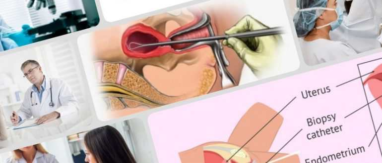Биопсия эндометрия - иконка статьи