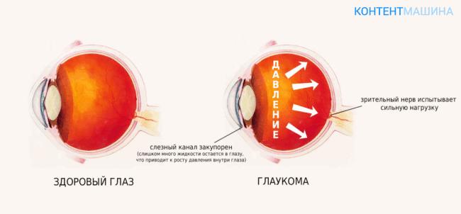 давление при глаукоме