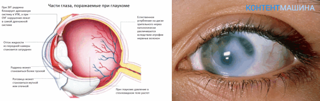 Внешние признаки глаукомы