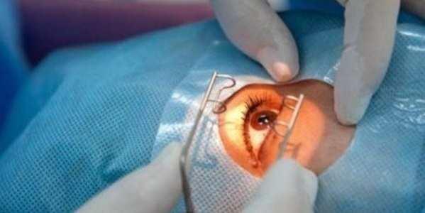 проведение операции при глаукоме