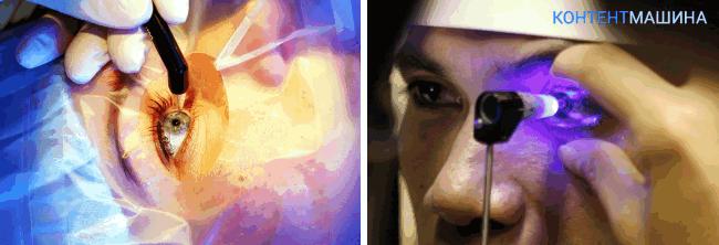 Операция при глаукоме - диагностика