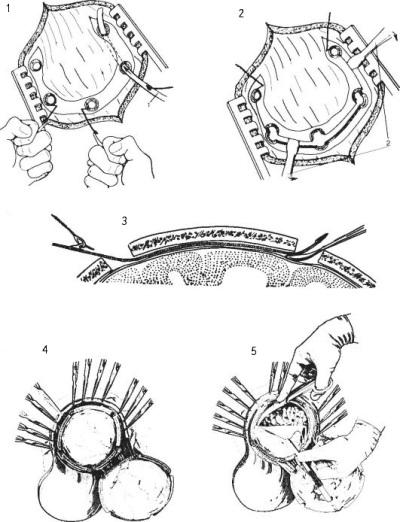 Костно-пластическаятрепанация черепа