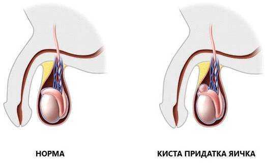 unnamed file 1 - Орхиэктомия — операция по удалению яичка: показания, проведение, послеоперационный период