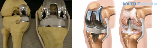 Замена коленного сустава имплантом