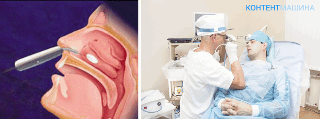 unnamed file 11 - Вазотомия носовых раковин — эффективная операция по борьбе с вазомоторным ренитом