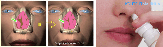 Вазотомия носовых раковин - результаты операции