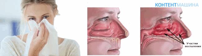 Заживление тканей после вазотомии носа
