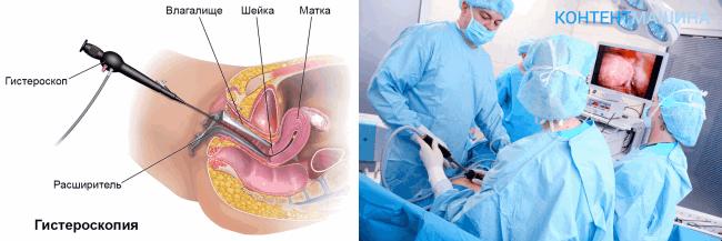 Гистероскопия матки - метод операции