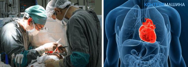 Проведение операции по пересадке сердца