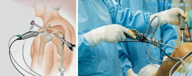 unnamed file 30 - Артроскопия плечевого сустава: как проходит операция и какие у нее последствия?
