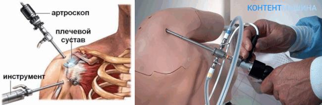 unnamed file 31 - Артроскопия плечевого сустава: как проходит операция и какие у нее последствия?