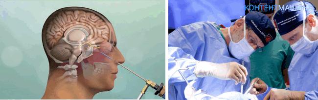 виды операций по удалению опухоли головного мозга