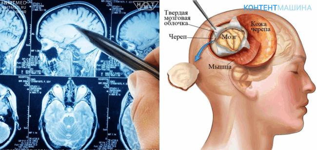 Иссечение отдельных костей черепа