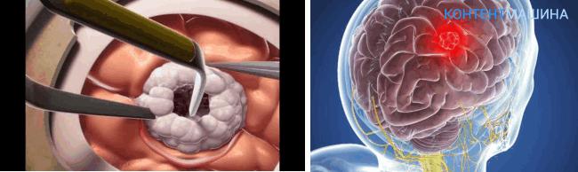 открытая операция на мозге