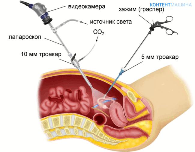 Удаление маточной трубы лапароскопическим методом
