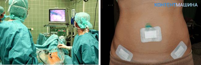 лапароскопия маточных труб - после операции