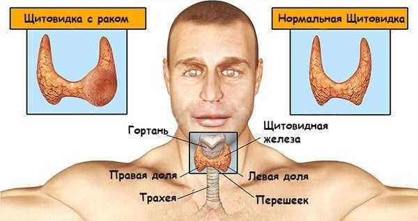 Показания к операции на щитовидной железе