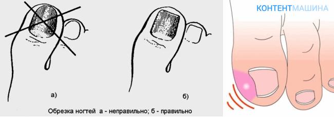 Показания к удалению вросшего ногтя