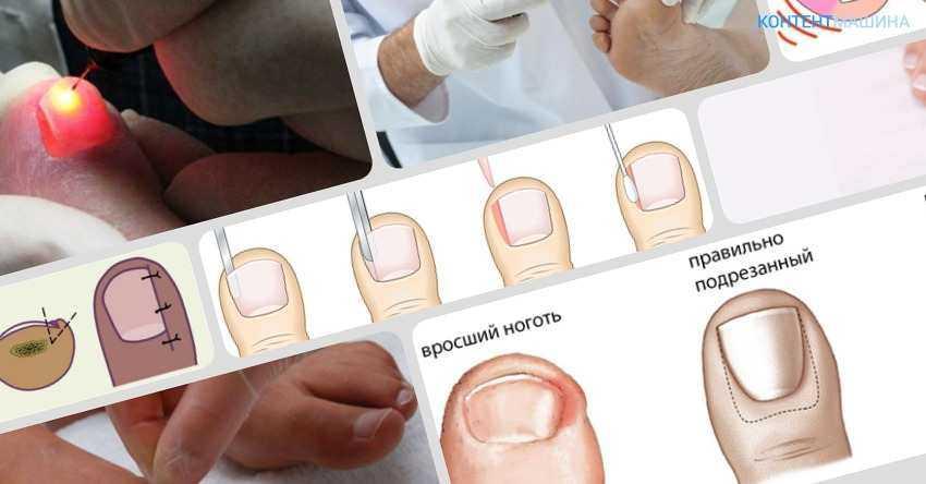 Удаление вросшего ногтя лазером: преимущества, как проводится