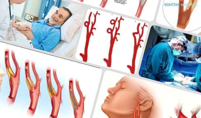 Операция на сонной артерии