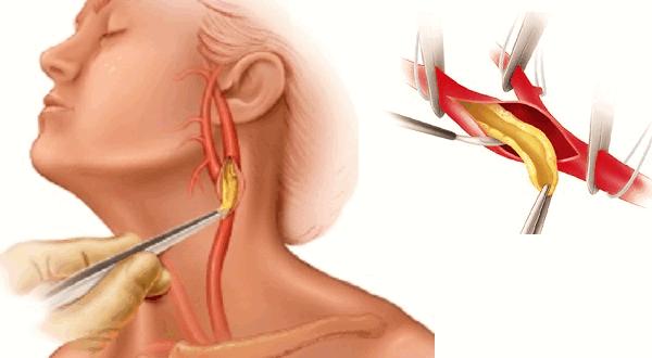 Для чего нужна операция на сонной артерии, виды, возможные осложнения и реабилитация