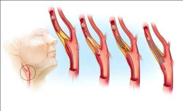Стентирование - как вид операции на сонной артерии