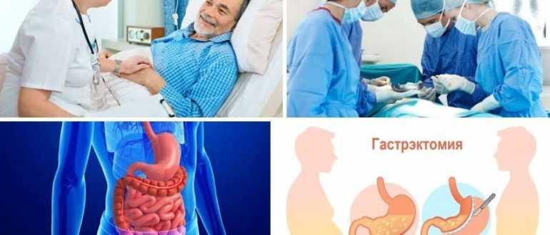Гастректомия - операция по удалению желудка