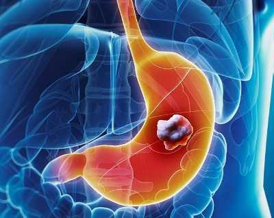 Ход операции при онкологии