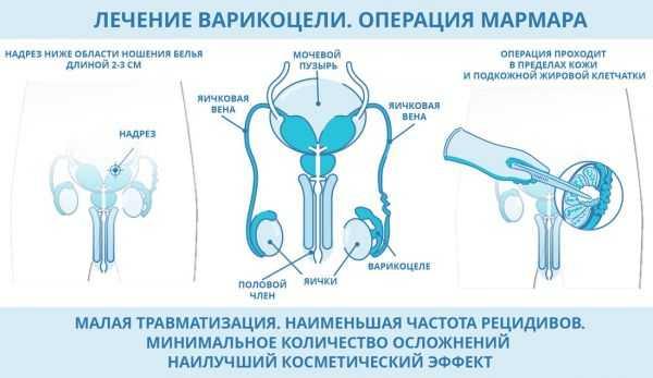лечение варикоцеле по Мармару