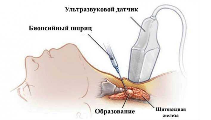 Процедура проведения биопсии щитовидной железы