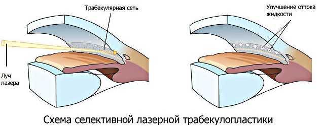 Трабекулопластика