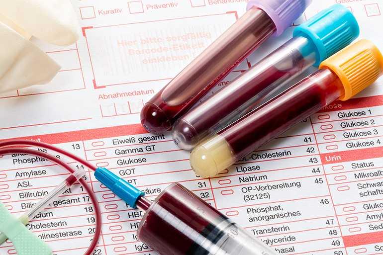 Анализ крови перед кератопластикой
